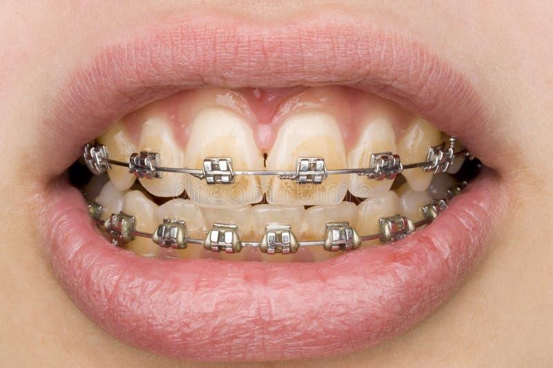 Falsche Mundhygiene lizenzfreie stockfotos