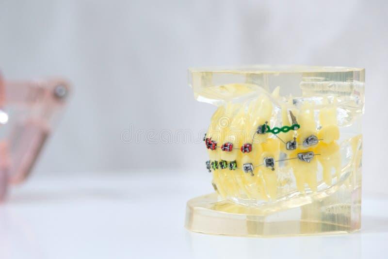 Falska tänder med hänglsen Demonstrationsmodell av tänder royaltyfria bilder