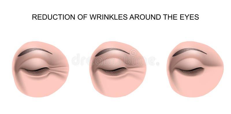 Falten um die Augen vektor abbildung