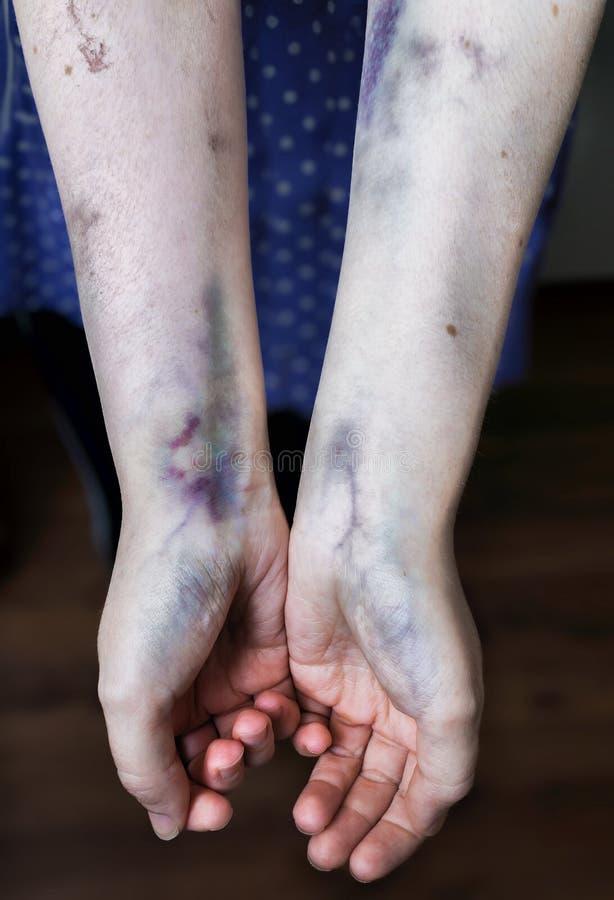 Familjevåldbegrepp Den missbrukade kvinnan visar hennes händer med blåmärken arkivfoton