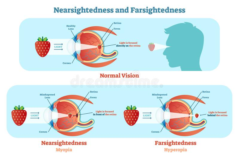 Far Sightedness and Near Sightedness vector illustration diagram, anatomical scheme. Medical educational information royalty free illustration
