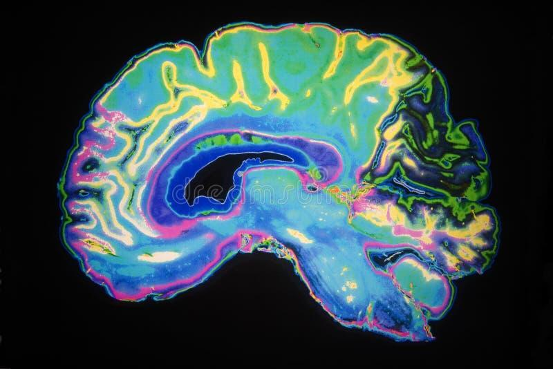 Farbiger MRI Scan des menschlichen Gehirns lizenzfreie abbildung