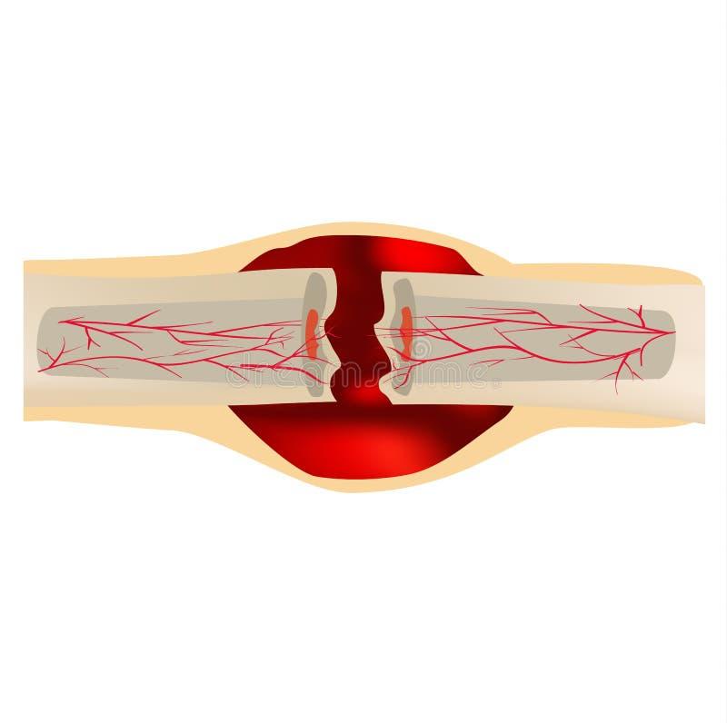 1 fase da fratura de osso da cura Forma??o de calo Hematoma A fratura de osso Infographics Ilustra??o do vetor sobre ilustração stock