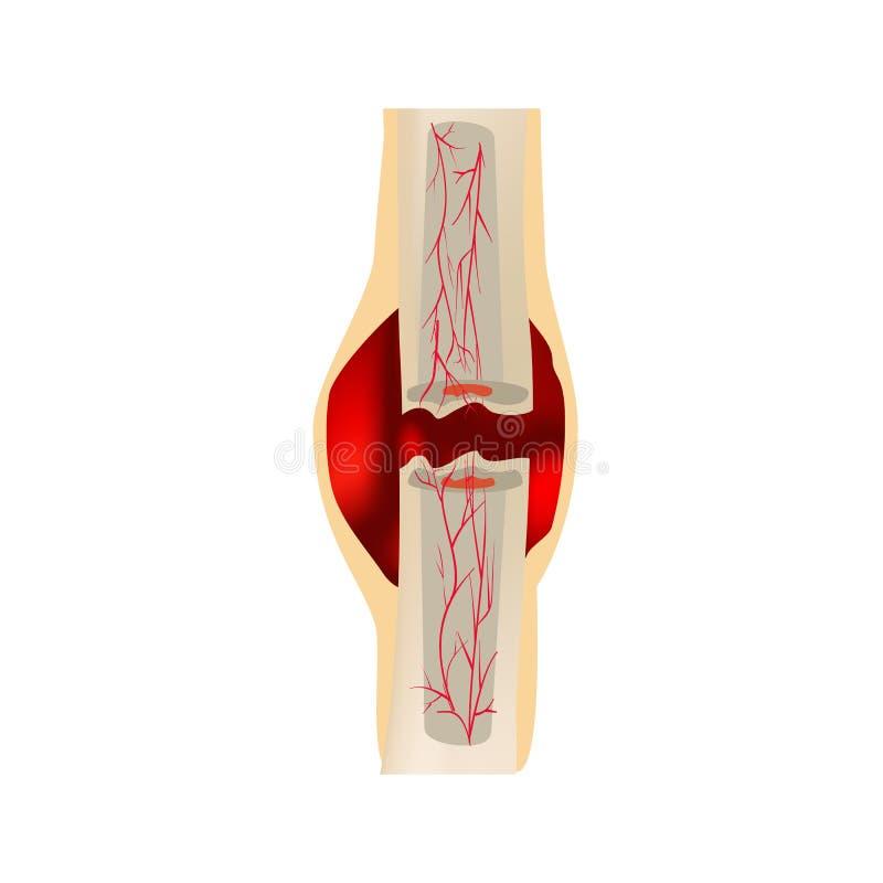 1 fase della frattura di guarigione Formazione di callo Ematoma La frattura Infographics Illustrazione di vettore sopra royalty illustrazione gratis