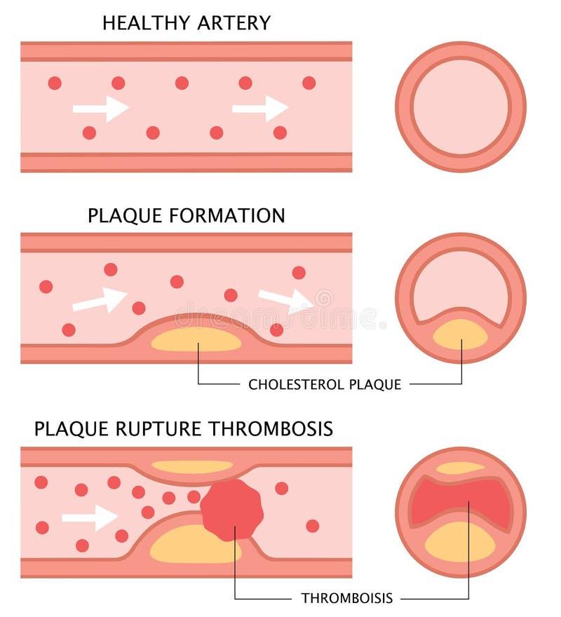 Fases da aterosclerose: artéria saudável, formação da chapa, e trombose no estilo liso isoladas no fundo branco Cuidados médicos  ilustração do vetor