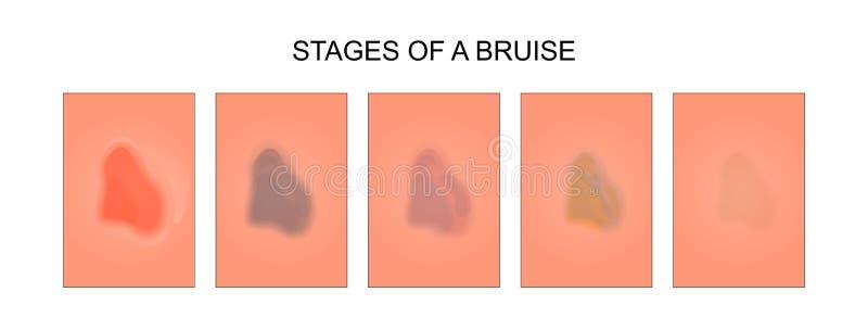 Fases da cura de uma equimose ilustração do vetor