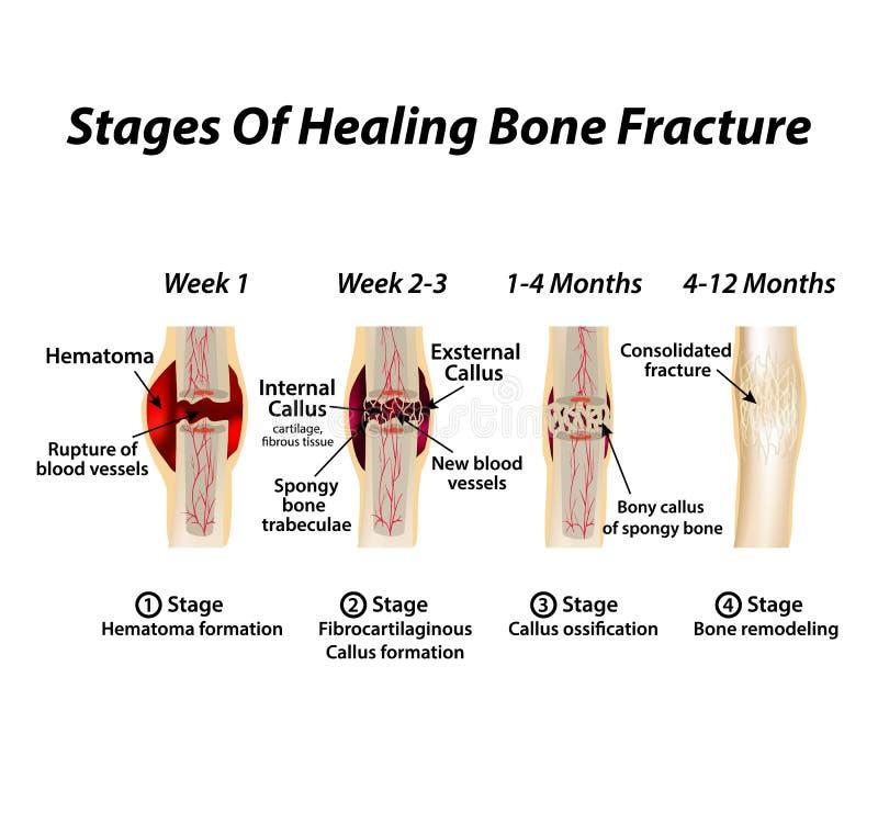 Fases da fratura de osso da cura Formação de calo A fratura de osso Infographics Ilustração do vetor no isolado ilustração royalty free
