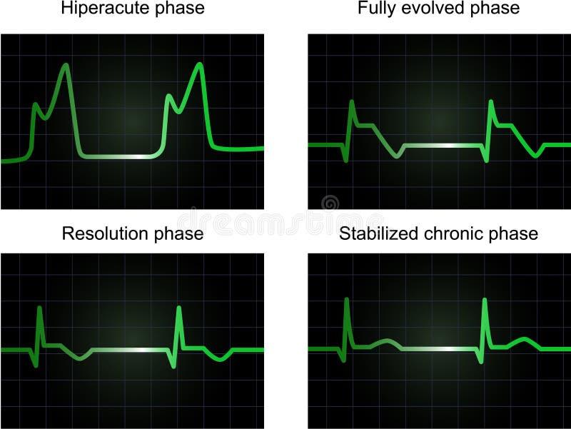 Fases del infarto miocardial del poste libre illustration