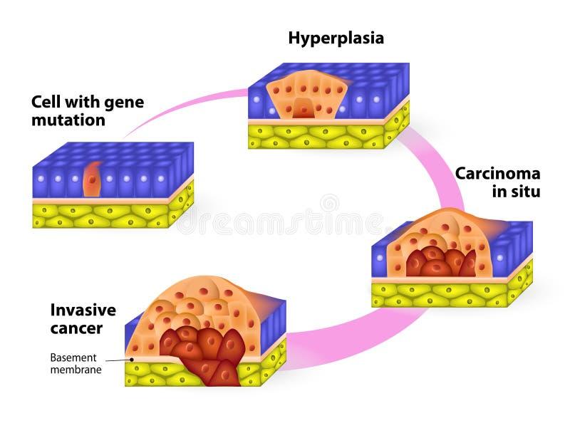 Fases desenvolventes de câncer ilustração royalty free