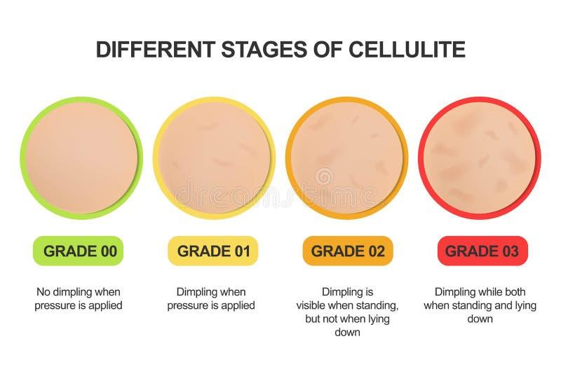 Fases diferentes das celulites Escala de classificação tratamentos ilustração do vetor