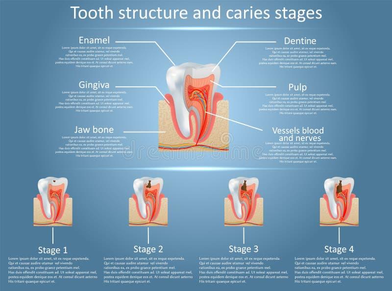 Fases do diagrama da estrutura do dente do vetor e da cárie dental ilustração stock