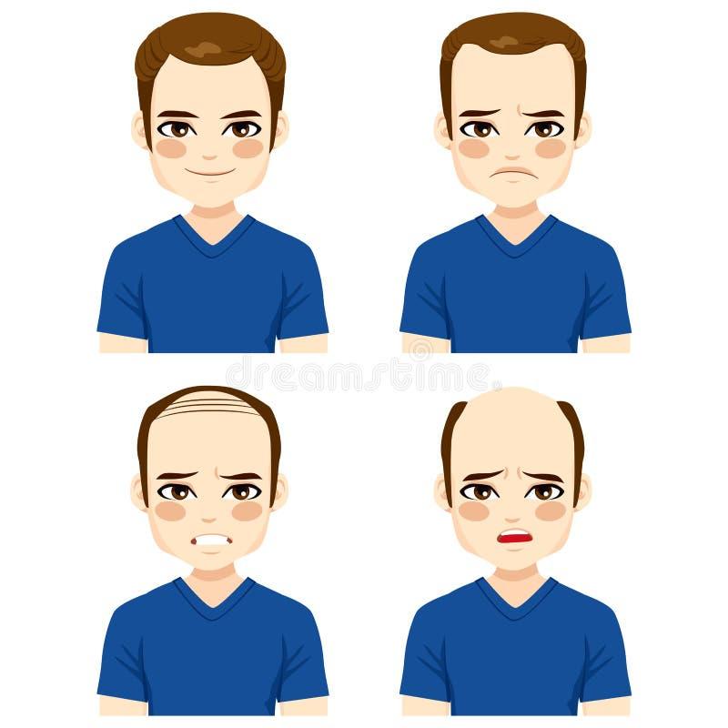 Fases masculinas da queda de cabelo ilustração royalty free