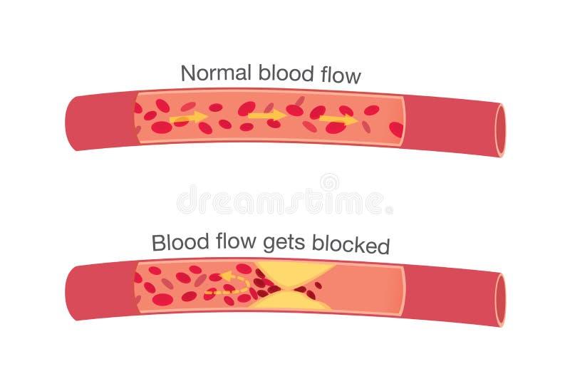 Fases normais da circulação sanguínea e de fases obstruídas ilustração do vetor
