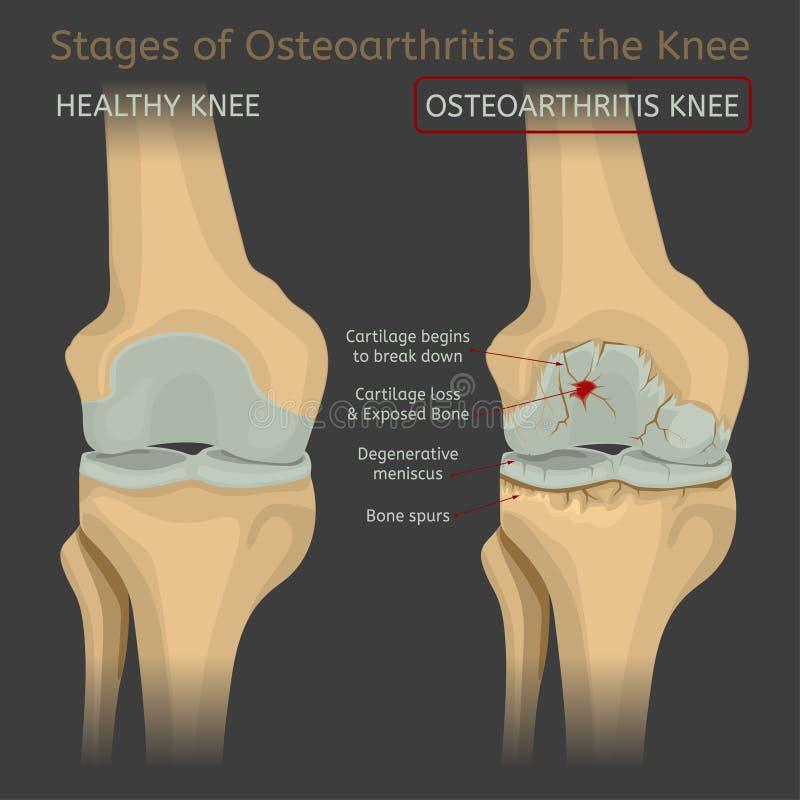 Fasi dell'osteoartrite del ginocchio illustrazione vettoriale