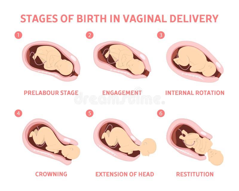 Fasi della nascita del bambino nella consegna vaginale royalty illustrazione gratis