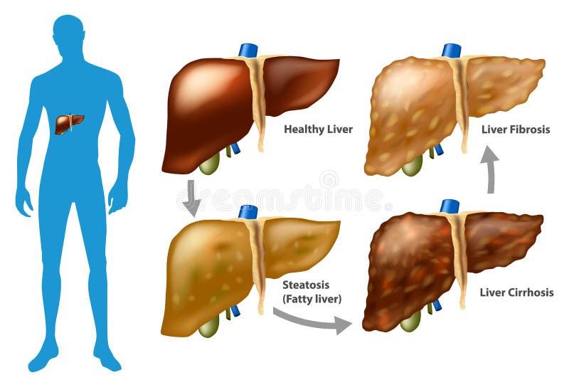 Fasi di danni al fegato illustrazione vettoriale