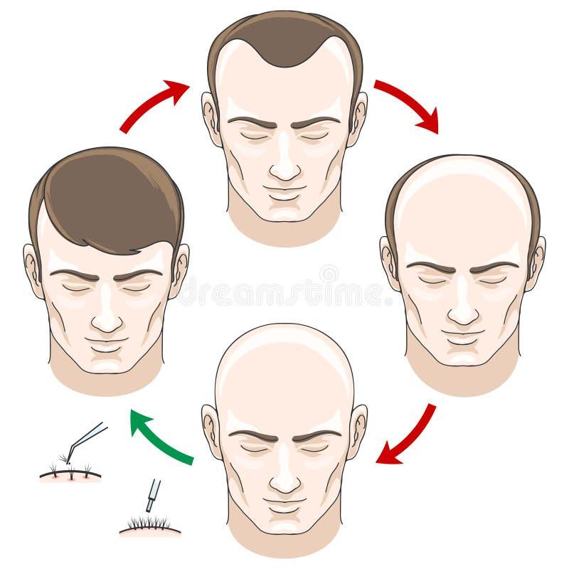 Fasi di perdita, del trattamento e del trapianto di capelli illustrazione di stock