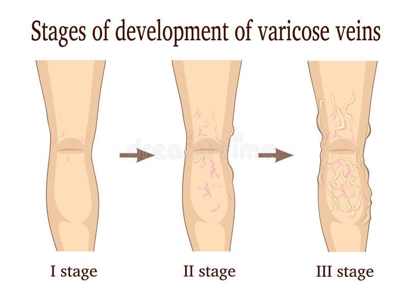 Fasi di sviluppo delle vene varicose royalty illustrazione gratis