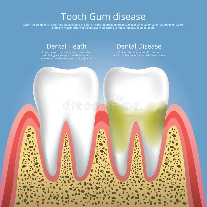 Fasi umane dei denti della malattia di gomma illustrazione di stock