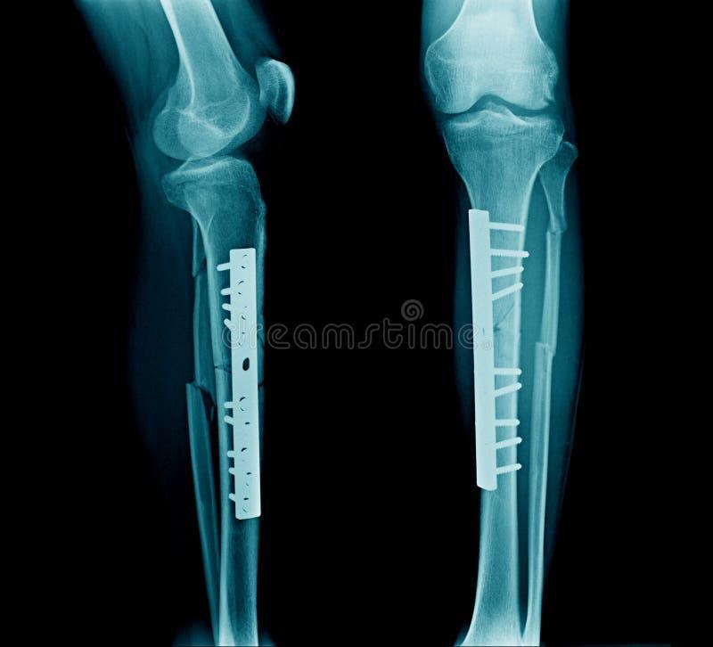 Fast tibiabenröntgenstråle arkivbilder