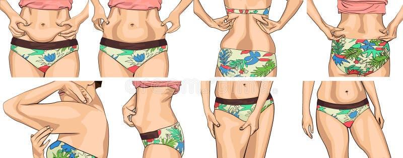 Fastställda kvinnor med den feta buken Flickan klämmer fast vecket av buken med båda händer Kvinnliga händer som trycker på henne vektor illustrationer