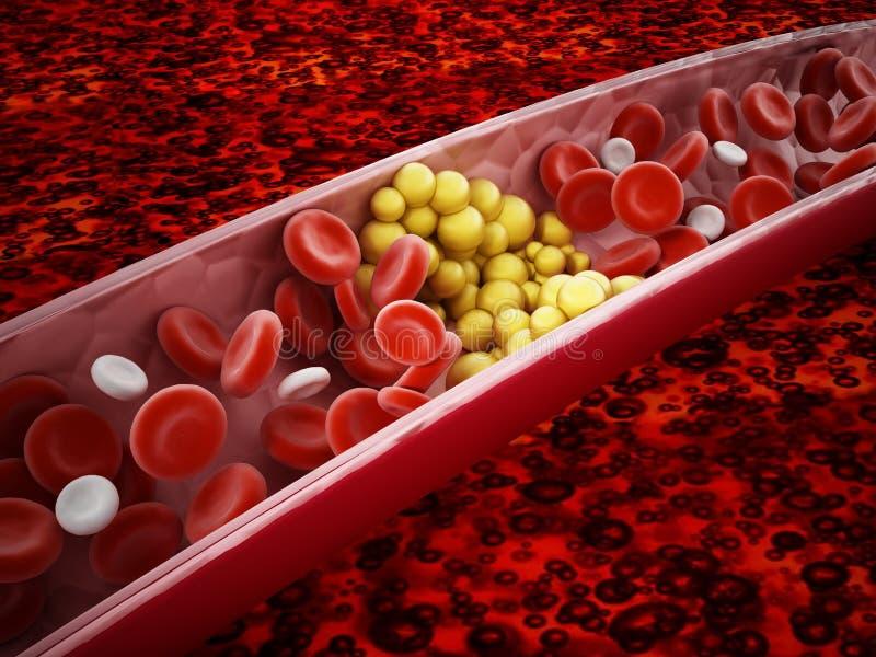 Fat cells blocking the blood flow inside human vein. 3D illustration stock illustration