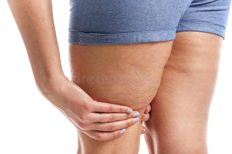 Fat and cellulite on the legs. stock photos