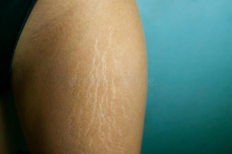 Fat Cellulite And Stretch Mark On Tan Skin Woman Leg At Home, Women Diet Styl. Stretch Marks On Woman`s Legs. Female Hand Holds Fat Cellulite And Stretch Mark On stock photography