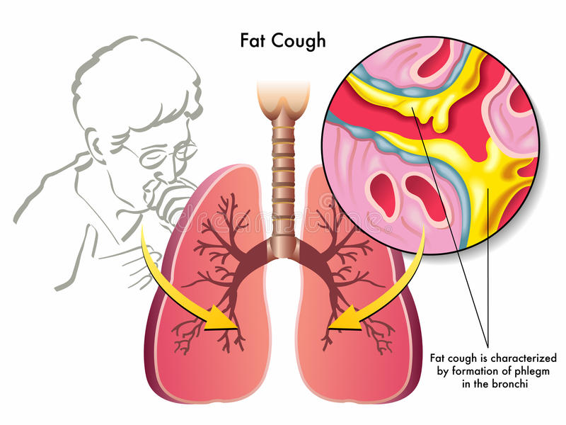 Image result for Fat cough