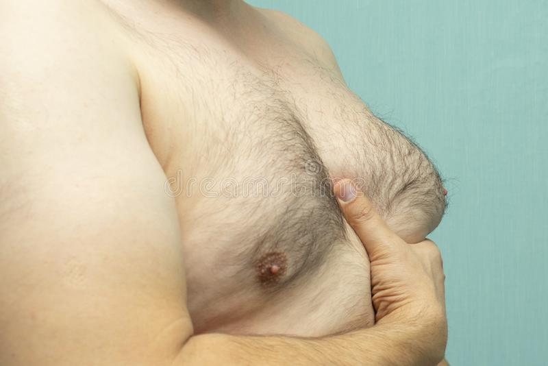 Fat white middle-aged man with Gynecomastia,. Enlarged breast royalty free stock photos