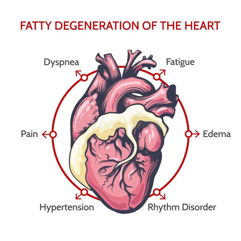 Fatty Degeneration of the Heart. Symptoms of decease illustration vector illustration