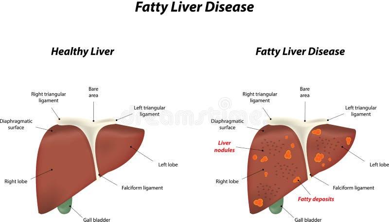 Fatty Liver Disease vector illustration