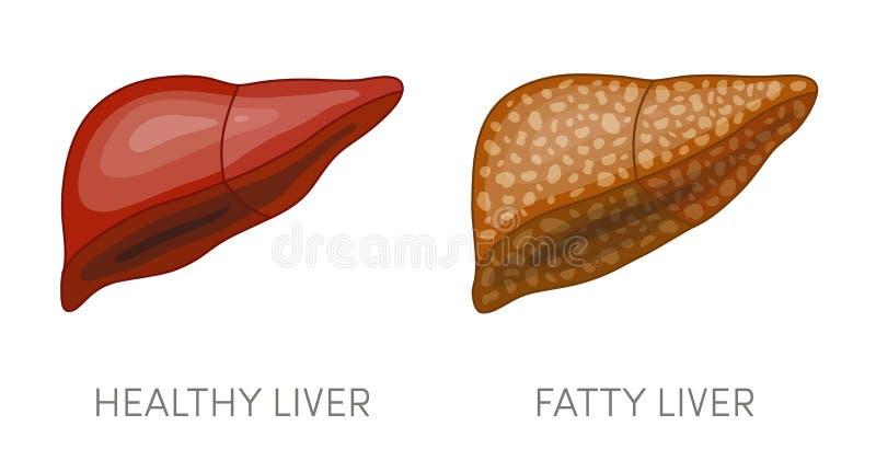 Fatty liver disease stock illustration