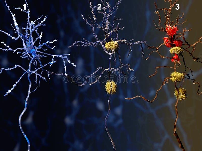 3 fazy Alzheimer choroba ilustracji