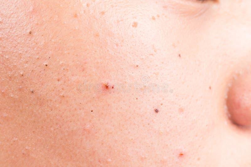 Fechado-acima da acne, das espinhas e das pústulas na pele facial fotografia de stock royalty free