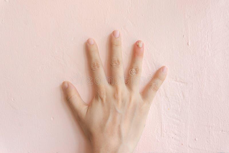 Feche acima da infecção do fungo do prego no dedo de anel Sofrimento humano da m?o da infec??o do fungo fotografia de stock royalty free