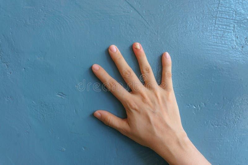 Feche acima da infec??o do fungo do prego no dedo pequeno Sofrimento humano da m?o da infec??o do fungo imagens de stock