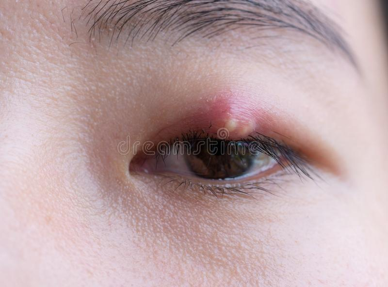 Feche acima da jovem mulher asiática com o olho marrom com infecção do chiqueiro Abcesso da pálpebra, hordeolum na saúde médica,  fotos de stock royalty free