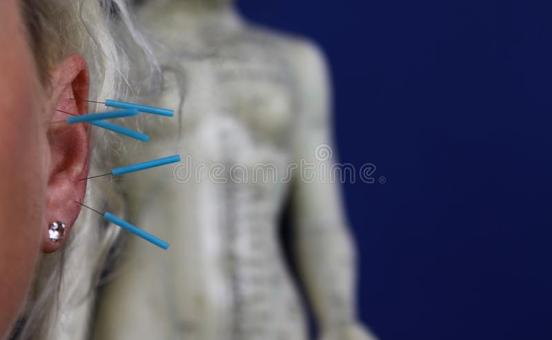 Feche acima da orelha fêmea humana com agulhas azuis: Acupuntura da orelha como um formulário da medicina chinesa alternativa fotografia de stock royalty free