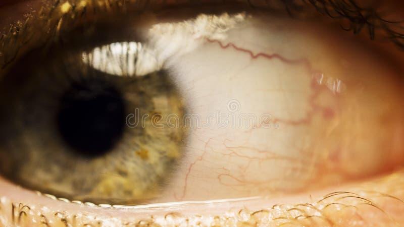 Feche acima do olho humano vermelho e irritado aberto largo imagem de stock
