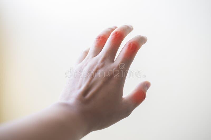 Feche acima do pateint da artrite reumatoide da mão imagens de stock