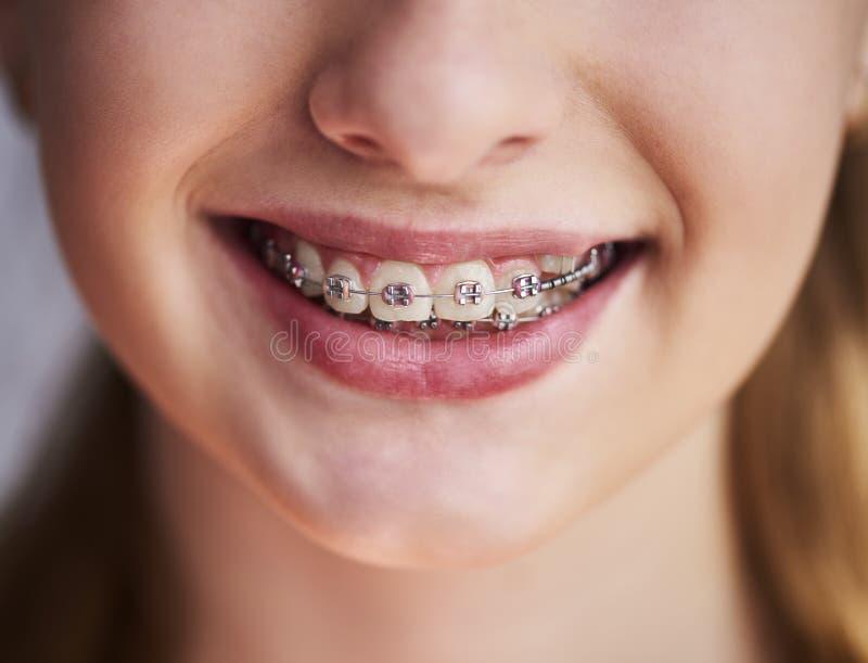 Feche acima dos dentes com cintas imagem de stock