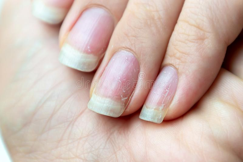 Feche acima dos pregos danificados que têm o problema após ter feito o tratamento de mãos Problema da saúde e da beleza imagens de stock