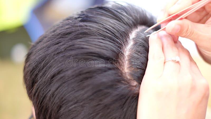 Feche a remoção de cabelo branco e cinza do couro cabeludo de homens de meia-idade, usando pinça fotos de stock