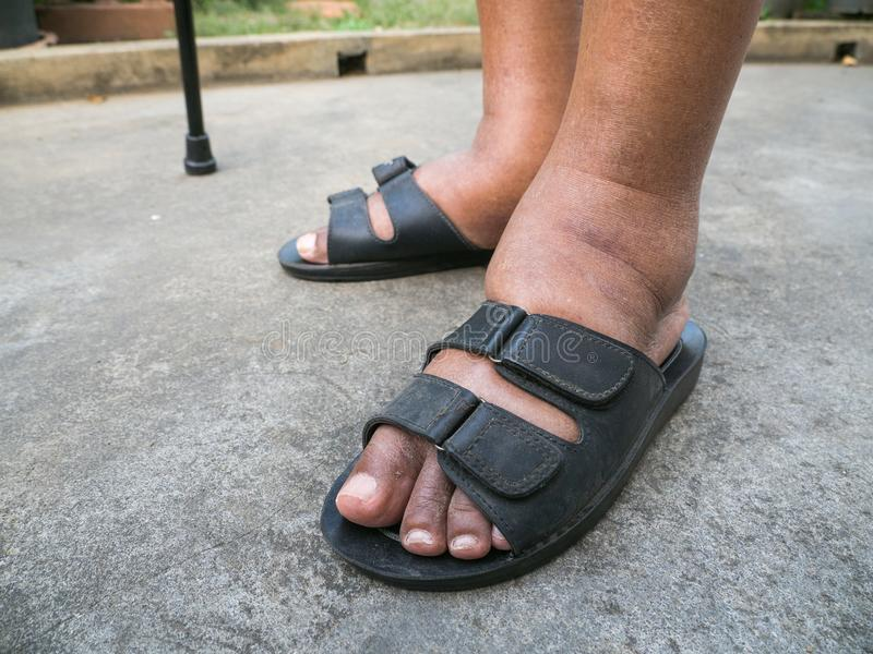The feet of man with diabetes, dull and swollen. Due to the toxicity of diabetes. Foot swelling caused by drinking water. And the body can not remove water stock photo