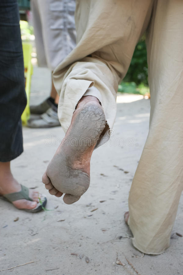 Feet of old man that climbs on date palm trees stock images