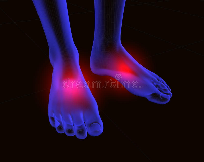 Feet And Pain 2 Royalty Free Stock Image
