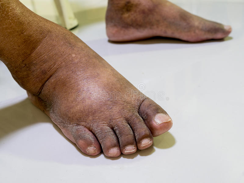 The feet of people with diabetes, dull and swollen. stock images