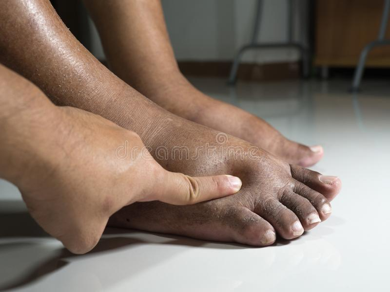 The feet of people with diabetes, dull and swollen. Due to the toxicity of diabetes placed on a white background. Fingers hit the. Back of the diabetic foot. To stock photos