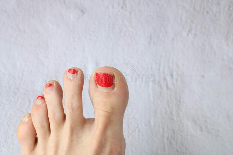 Feet and toes of a woman that are dry, cracked and in need of a pedicure. royalty free stock image